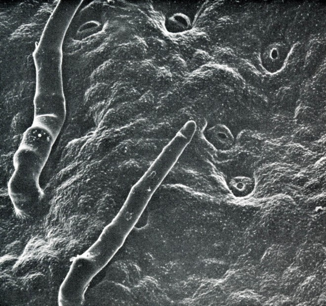 Scanning electron micrograph of the leaf surface of Simmondsia chinensis, native to the southwestern U.S. The small holes are stomata and the finger-like projections are leaf hairs. Magnification 400X. Photographs by James Collatz, Stanford University.