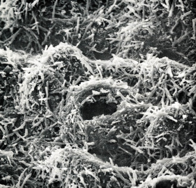 Scanning electron micrograph of the cuticle of Eucalyptus socialis showing heavy deposition of wax particles. The opening is a single stomate. E. socialis is a shrub-type eucalyptus native to southeastern Australia. Magnification 200X.