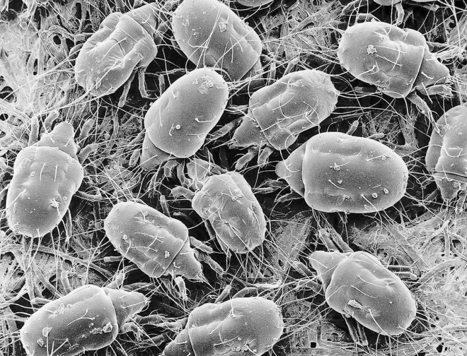 Dust mites (Tyrophagus putrescentiae), 100x. Photograph by Eric Erbe